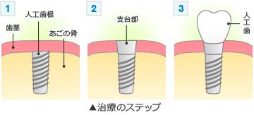 il_implant_step