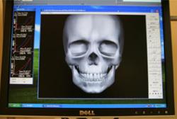 ナソヘキサグラフ(顎機能コンピュータ解析装置)